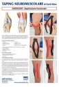 Taping NeuroMuscolare - Ginocchio - Applicazione funzionale - David Blow - Poster